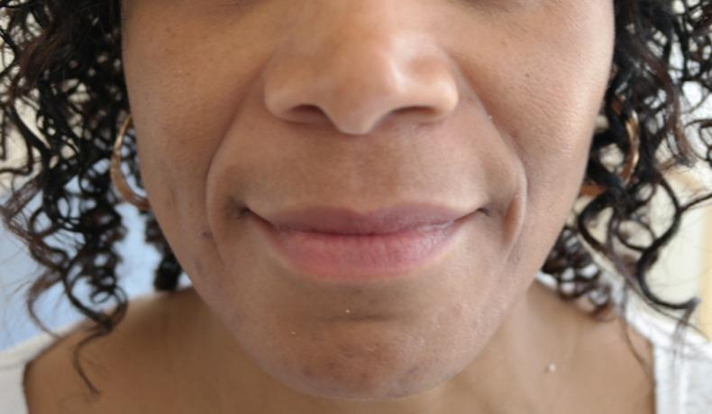 Facial Aesthetics London Bridge | Bermondsey | Advanced